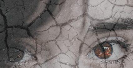 Síndrome do Olho Seco: você pode ter!